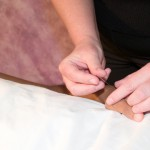 Why Did I React Badly to Acupuncture?